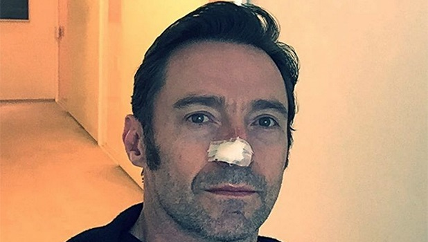 Hugh jackman skin cancer 3